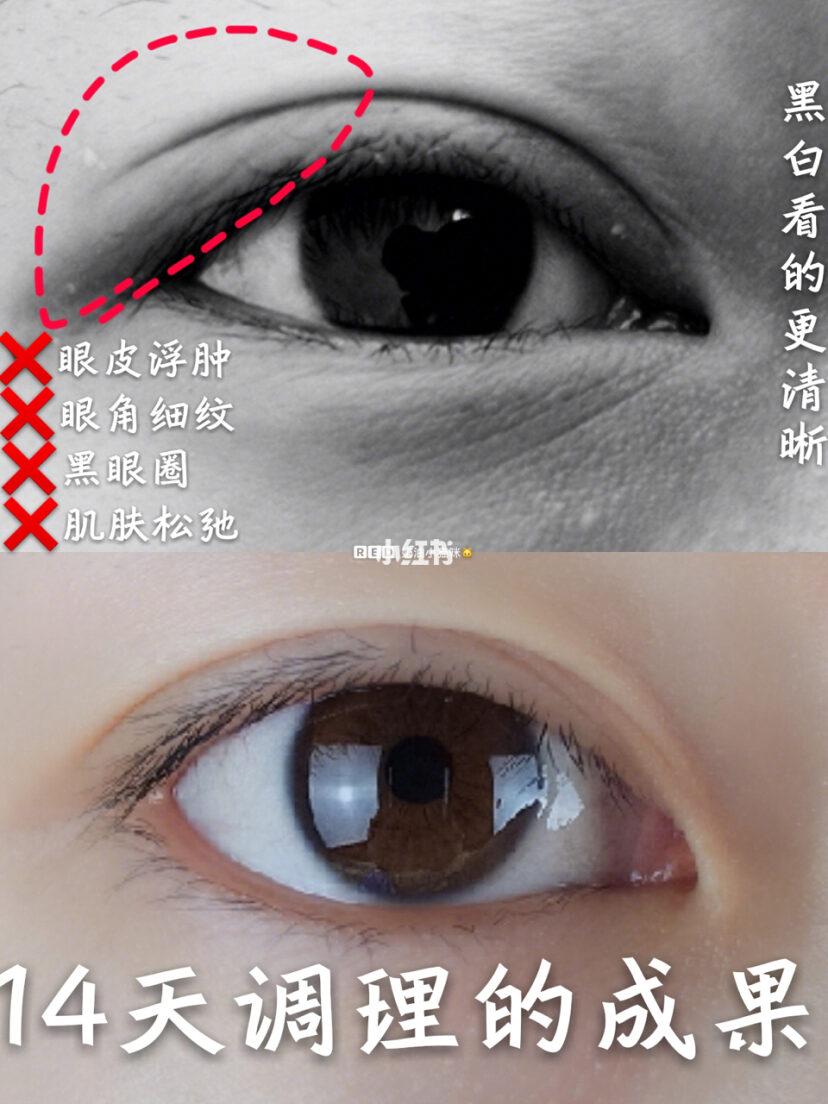 眼睑下垂是怎么回事?医生说多是由于这几种原因造成的