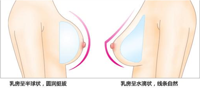 嘉兴隆胸众問w禾美专业